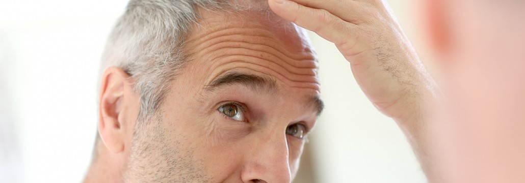 hair loss thinning aging baldness